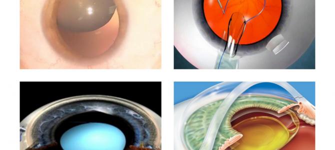 La lente a Fissazione Sclerale